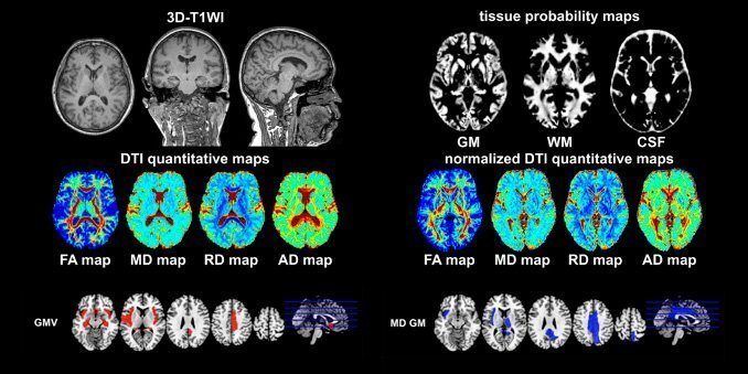 Neurologiske og Cerebrale mikrostrukturelle ændringer i COVID-19-patienter